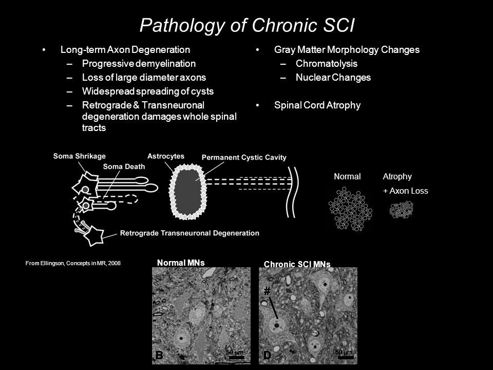 Pathology of Chronic SCI Long-term Axon Degeneration –Progressive demyelination –Loss of large diameter axons –Widespread spreading of cysts –Retrograde & Transneuronal degeneration damages whole spinal tracts Gray Matter Morphology Changes –Chromatolysis –Nuclear Changes Spinal Cord Atrophy NormalAtrophy + Axon Loss Normal MNs Chronic SCI MNs From Ellingson, Concepts in MR, 2008