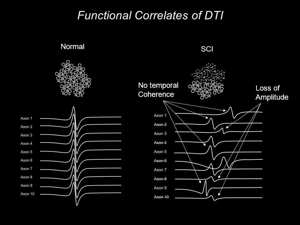 Functional Correlates of DTI Normal SCI No temporal Coherence Loss of Amplitude