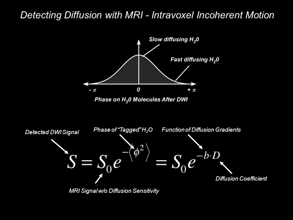 Detecting Diffusion with MRI - Intravoxel Incoherent Motion Detected DWI Signal MRI Signal w/o Diffusion Sensitivity Phase of Tagged H 2 OFunction of Diffusion Gradients Diffusion Coefficient