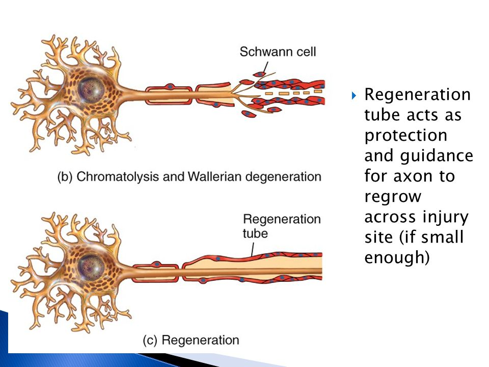 Regeneration tube acts as protection and guidance for axon to regrow across injury site (if small enough)