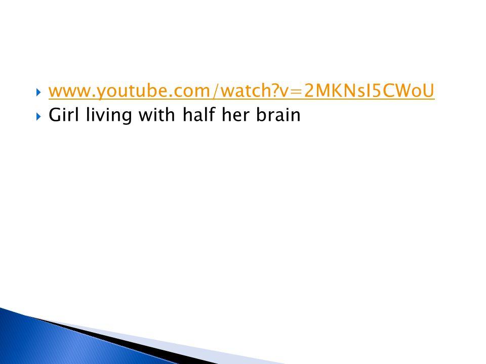  www.youtube.com/watch?v=2MKNsI5CWoU www.youtube.com/watch?v=2MKNsI5CWoU  Girl living with half her brain