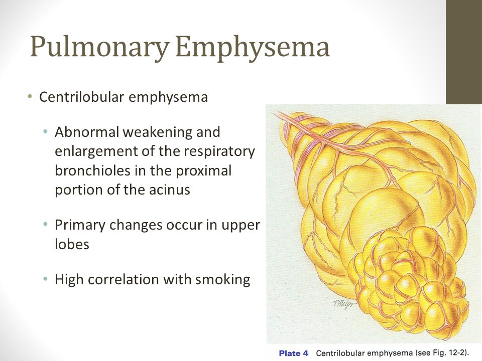 Pulmonary Emphysema Centrilobular emphysema Abnormal weakening and enlargement of the respiratory bronchioles in the proximal portion of the acinus Primary changes occur in upper lobes High correlation with smoking