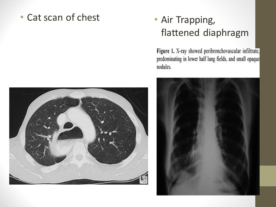 Cat scan of chest Air Trapping, flattened diaphragm