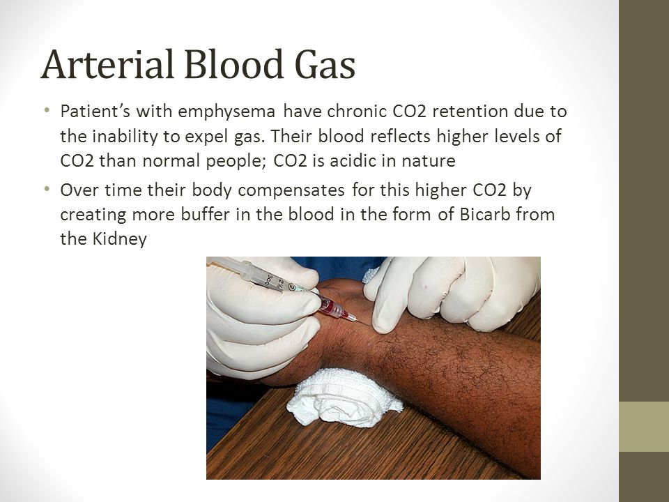 Arterial Blood Gas Patient's with emphysema have chronic CO2 retention due to the inability to expel gas.