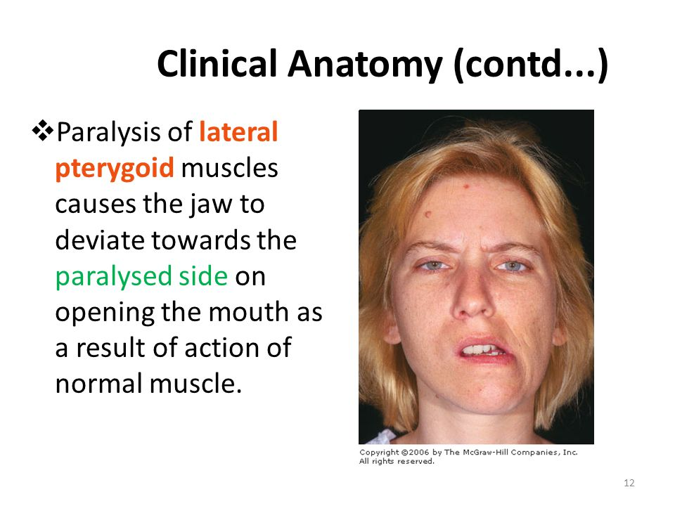 Clinical Anatomy (contd...)  Paralysis of lateral pterygoid muscles causes the jaw to deviate towards the paralysed side on opening the mouth as a result of action of normal muscle.