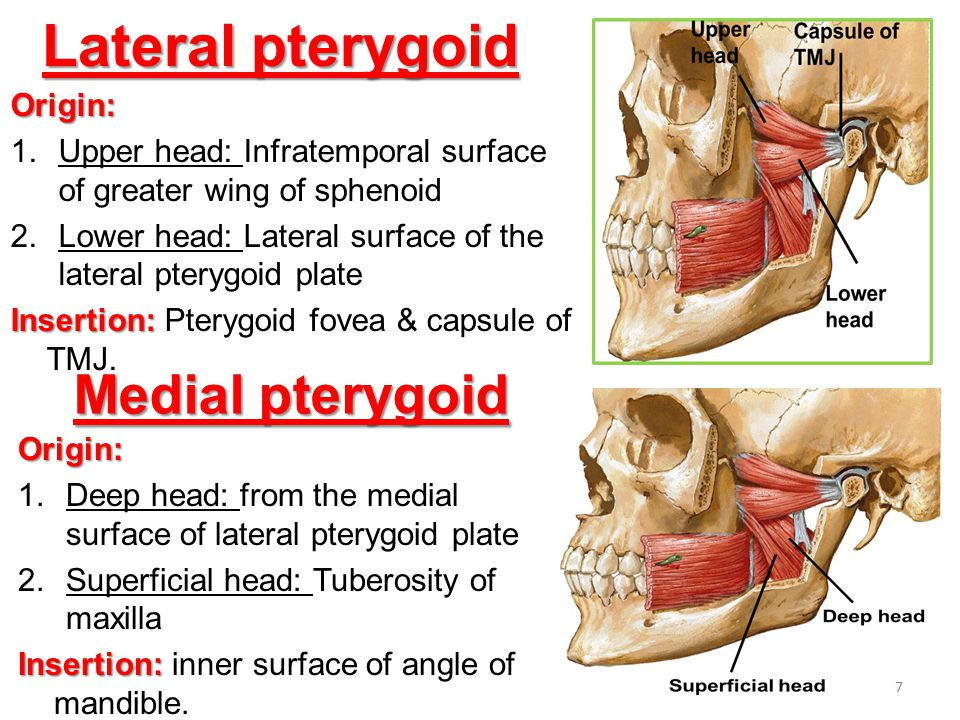 Lateral pterygoid Origin: 1.Upper head: Infratemporal surface of greater wing of sphenoid 2.Lower head: Lateral surface of the lateral pterygoid plate