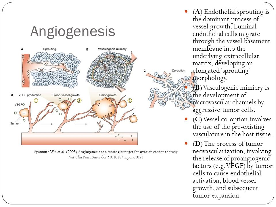 Spannuth WA et al. (2008) Angiogenesis as a strategic target for ovarian cancer therapy Nat Clin Pract Oncol doi:10.1038/ncponc1051 Angiogenesis (A) E