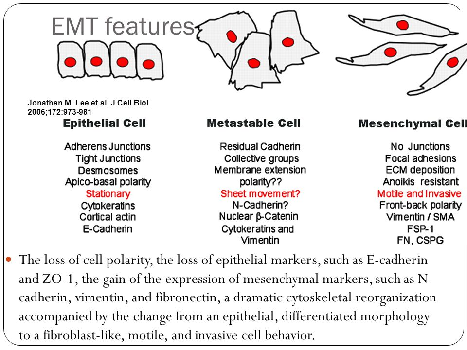 The loss of cell polarity, the loss of epithelial markers, such as E-cadherin and ZO-1, the gain of the expression of mesenchymal markers, such as N- cadherin, vimentin, and fibronectin, a dramatic cytoskeletal reorganization accompanied by the change from an epithelial, differentiated morphology to a fibroblast-like, motile, and invasive cell behavior.