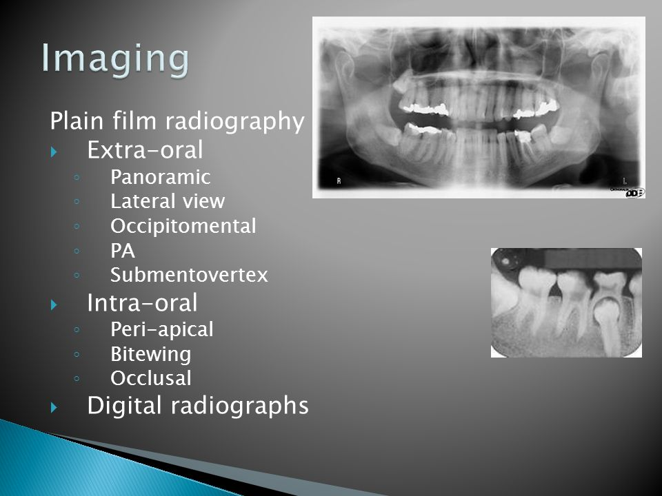 Plain film radiography  Extra-oral ◦ Panoramic ◦ Lateral view ◦ Occipitomental ◦ PA ◦ Submentovertex  Intra-oral ◦ Peri-apical ◦ Bitewing ◦ Occlusal  Digital radiographs