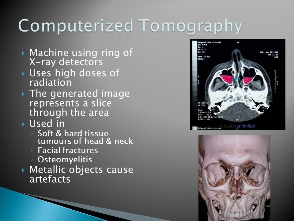  Machine using ring of X-ray detectors  Uses high doses of radiation  The generated image represents a slice through the area  Used in ◦ Soft & hard tissue tumours of head & neck ◦ Facial fractures ◦ Osteomyelitis  Metallic objects cause artefacts