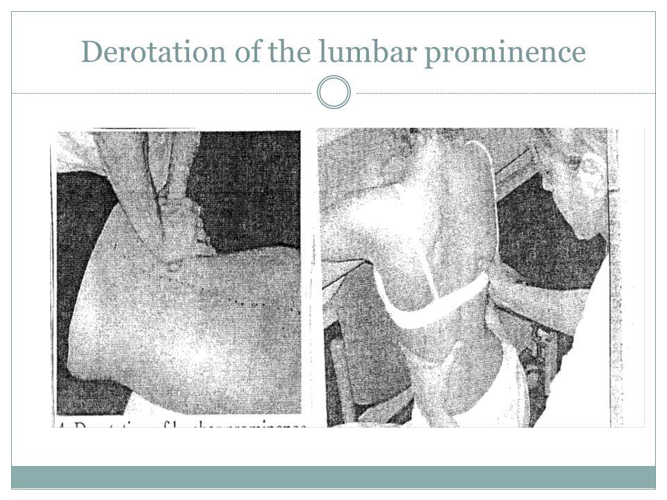 Derotation of the lumbar prominence