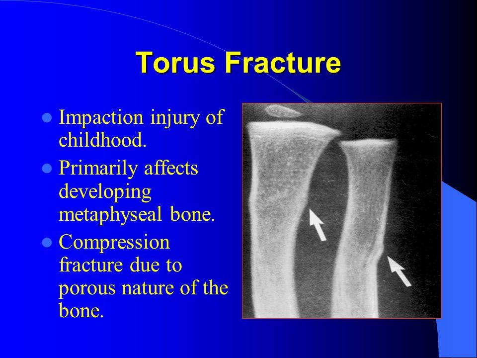 Torus Fracture Impaction injury of childhood.Primarily affects developing metaphyseal bone.