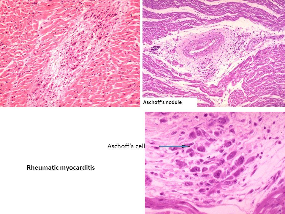 Aschoff's nodule Rheumatic myocarditis Aschoff's cell