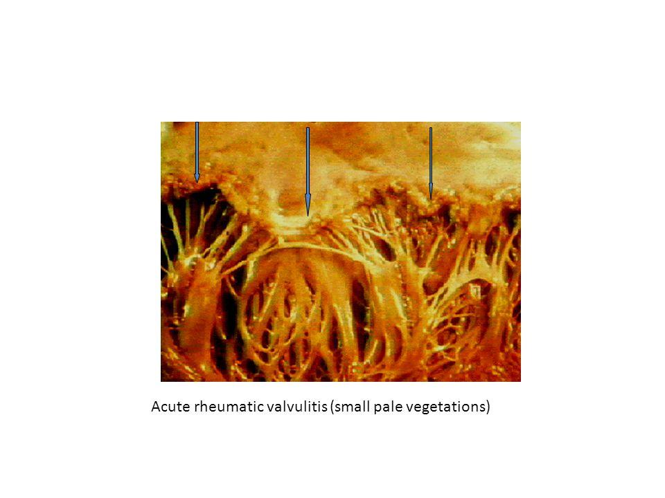 Acute rheumatic valvulitis (small pale vegetations)