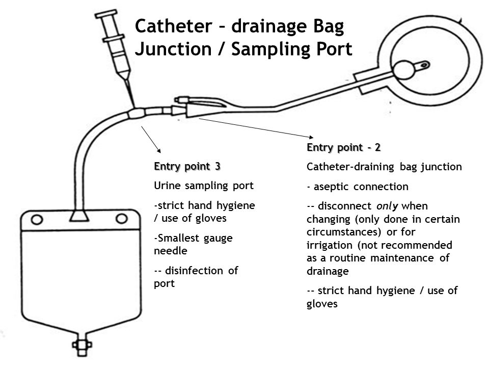 Catheter – drainage Bag Junction / Sampling Port Entry point - 2 Catheter-draining bag junction - aseptic connection -- disconnect only when changing (only done in certain circumstances) or for irrigation (not recommended as a routine maintenance of drainage -- strict hand hygiene / use of gloves Entry point 3 Urine sampling port -strict hand hygiene / use of gloves -Smallest gauge needle -- disinfection of port Catheter – drainage Bag Junction / Sampling Port