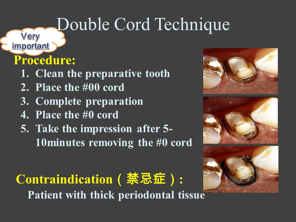 1.Clean the preparative tooth 2.Place the #00 cord 3.Complete preparation 4.Place the #0 cord 5.Take the impression after 5- 10minutes removing the #0 cord Double Cord Technique Procedure: Contraindication (禁忌症) : Patient with thick periodontal tissue