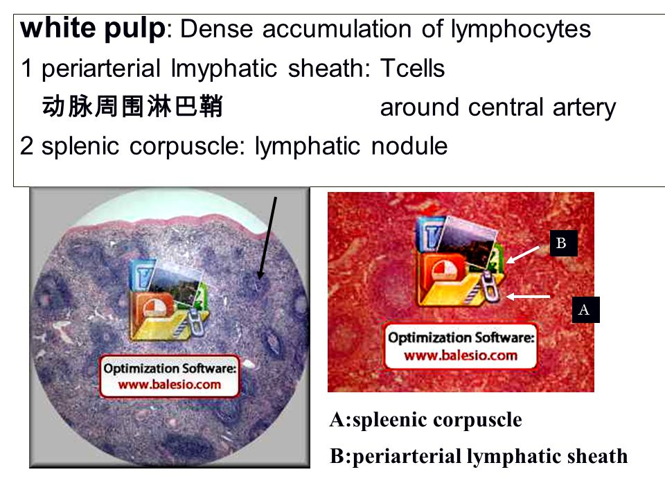 white pulp : Dense accumulation of lymphocytes 1 periarterial lmyphatic sheath: Tcells 动脉周围淋巴鞘 around central artery 2 splenic corpuscle: lymphatic nodule B:periarterial lymphatic sheath A:spleenic corpuscle A B