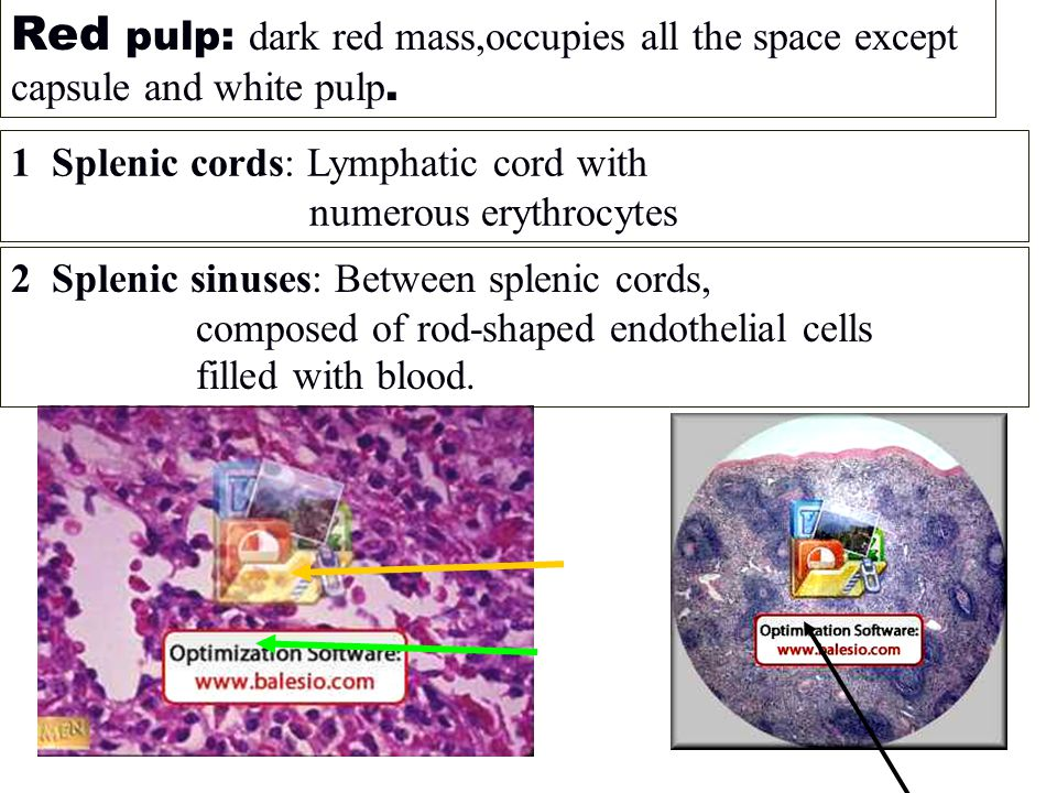 Red pulp: dark red mass,occupies all the space except capsule and white pulp.