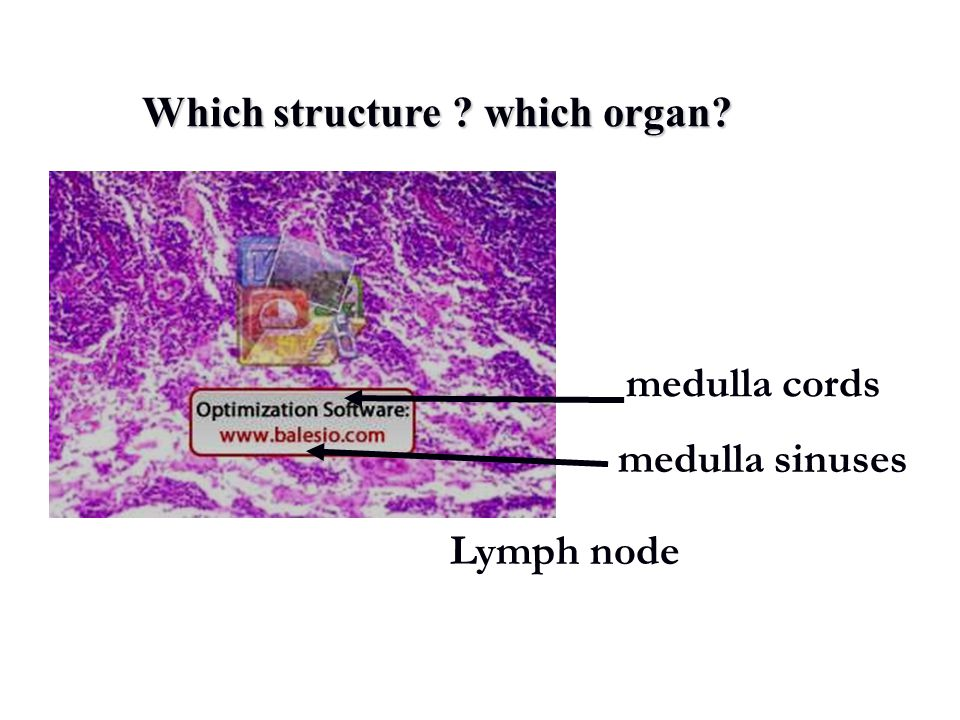Which structure which organ medulla cords medulla sinuses Lymph node