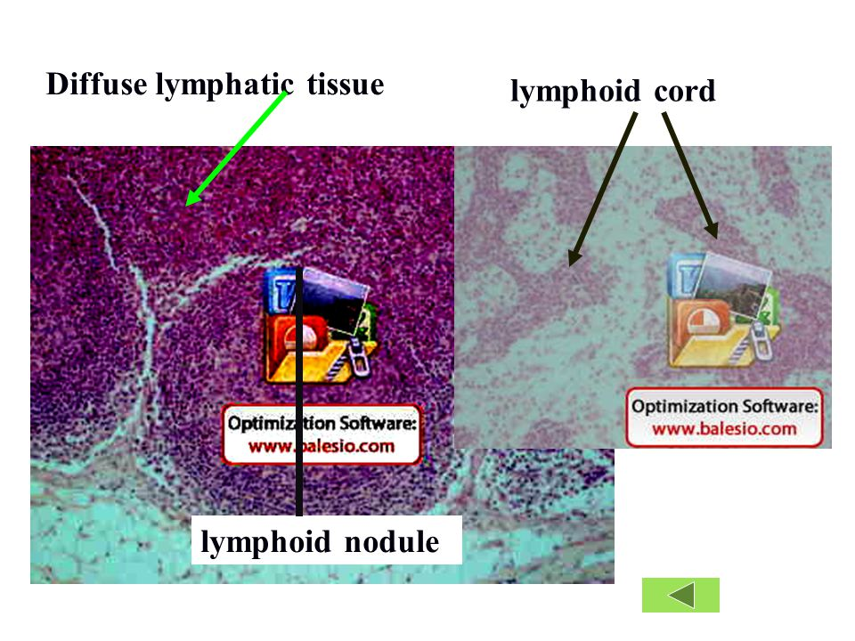 lymphoid nodule Diffuse lymphatic tissue lymphoid cord