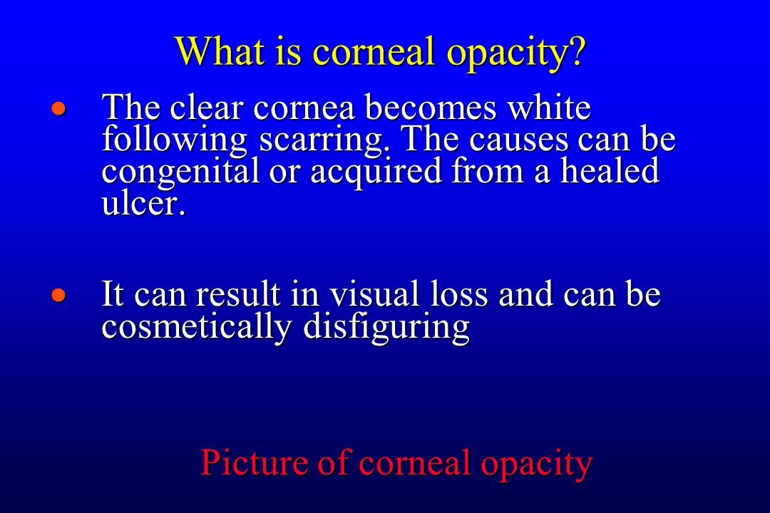 What is Corneal Dystrophies.