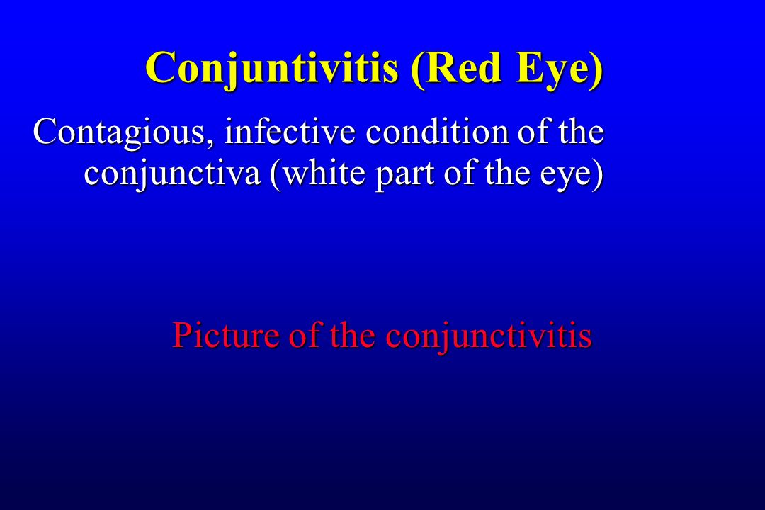 Contagious, infective condition of the conjunctiva (white part of the eye) Picture of the conjunctivitis Conjuntivitis (Red Eye)