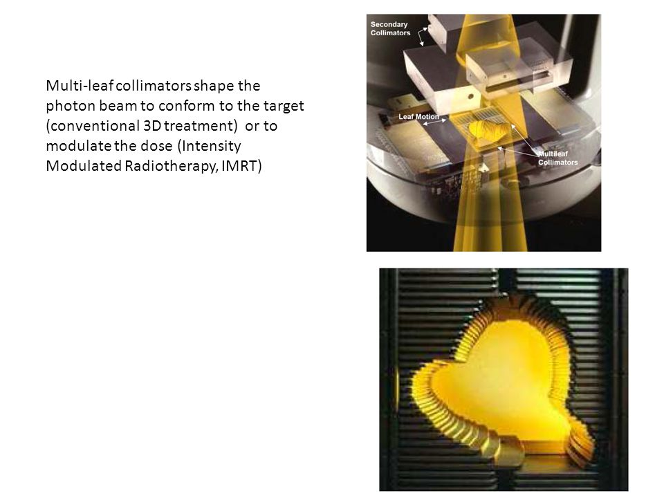 Multi-leaf collimators shape the photon beam to conform to the target (conventional 3D treatment) or to modulate the dose (Intensity Modulated Radiotherapy, IMRT)