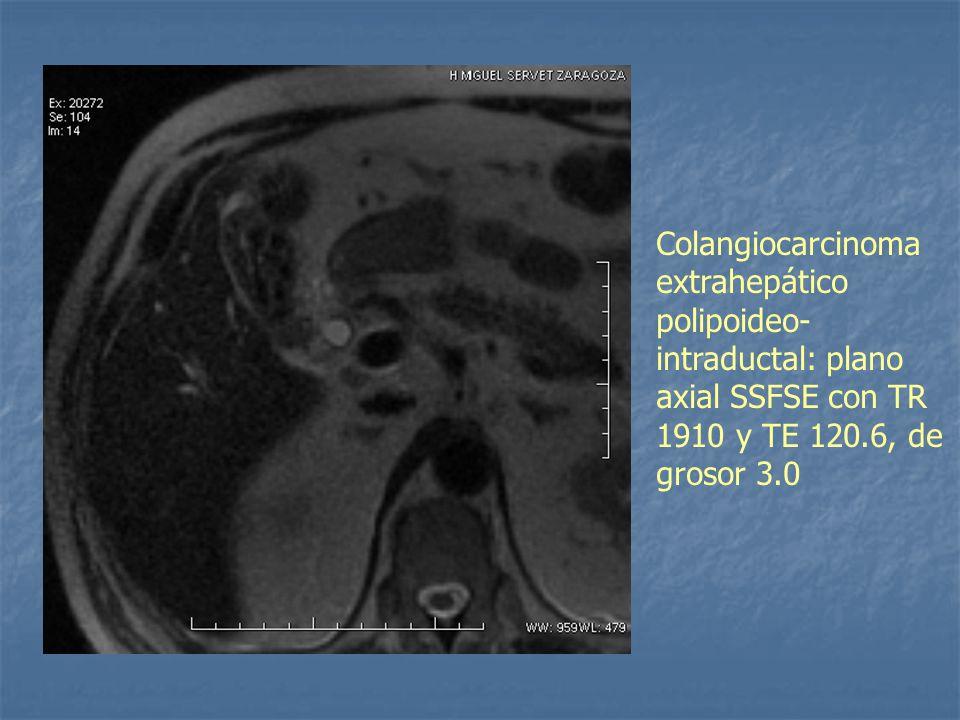 Colangiocarcinoma extrahepático polipoideo- intraductal: plano axial SSFSE con TR 1910 y TE 120.6, de grosor 3.0