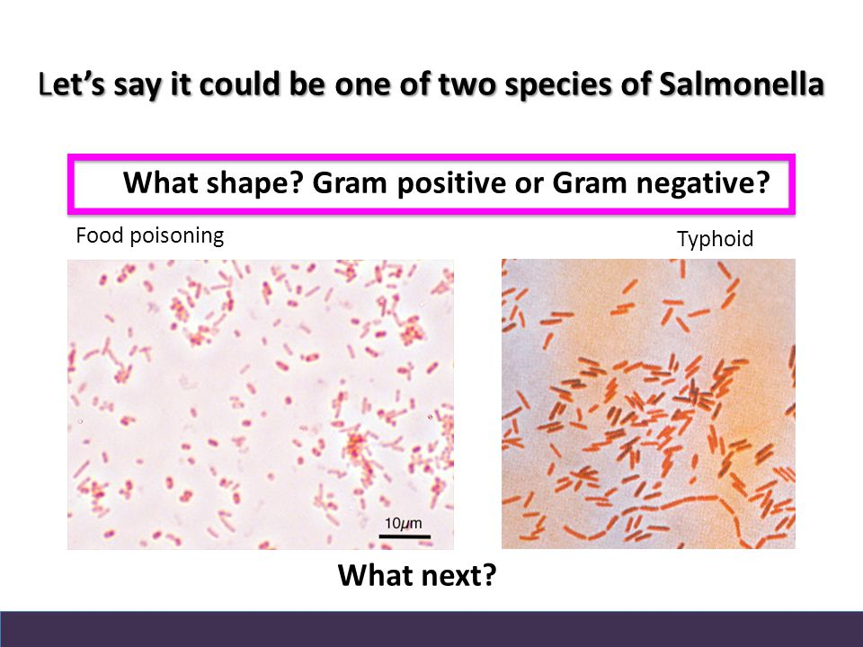 Let's say it could be one of two species of Salmonella Food poisoning Typhoid What shape.