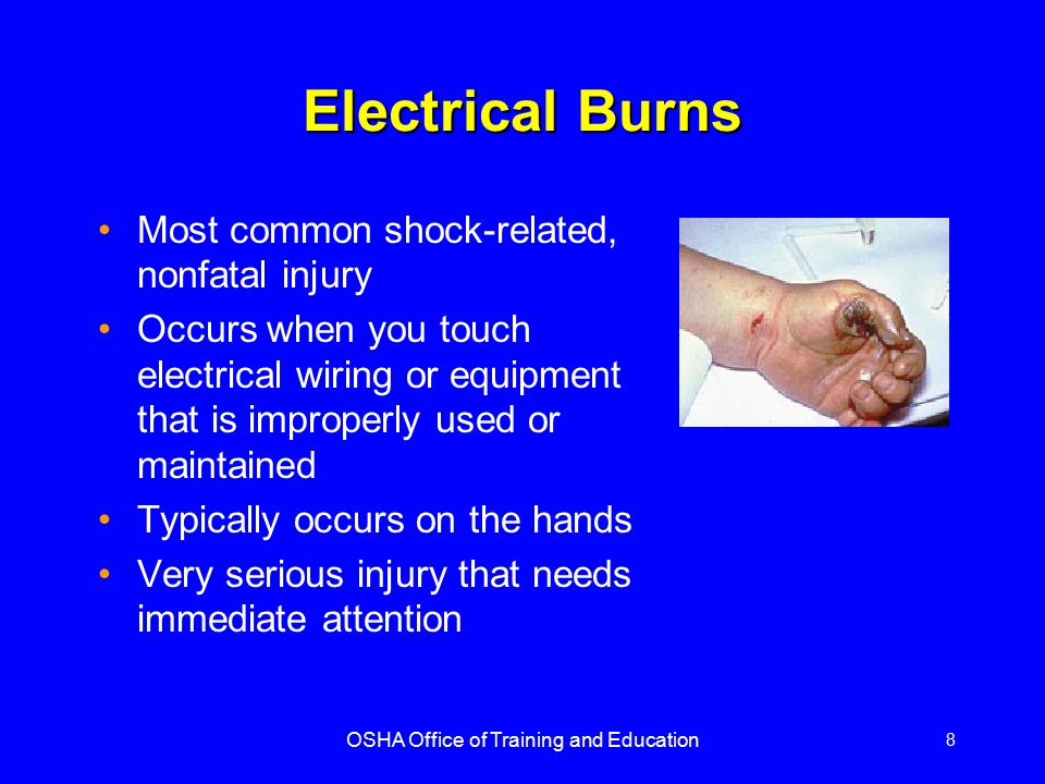 OSHA Office of Training and Education 8 Electrical Burns Most common shock-related, nonfatal injury Occurs when you touch electrical wiring or equipme
