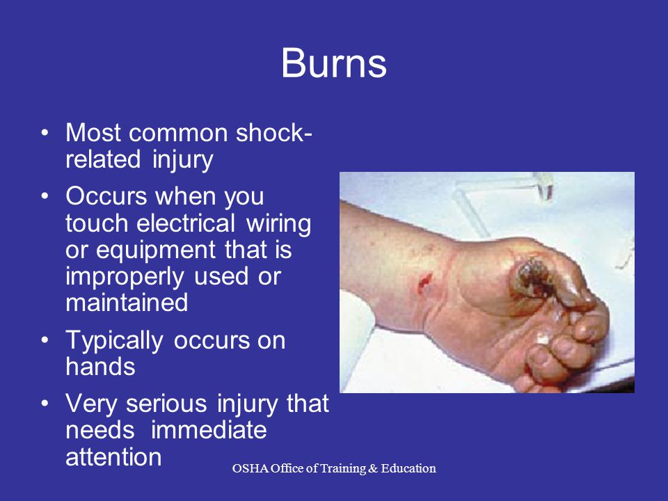 Burns Most common shock- related injury Occurs when you touch electrical wiring or equipment that is improperly used or maintained Typically occurs on hands Very serious injury that needs immediate attention OSHA Office of Training & Education