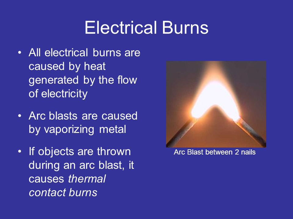 Electrical Burns All electrical burns are caused by heat generated by the flow of electricity Arc blasts are caused by vaporizing metal If objects are thrown during an arc blast, it causes thermal contact burns Arc Blast between 2 nails