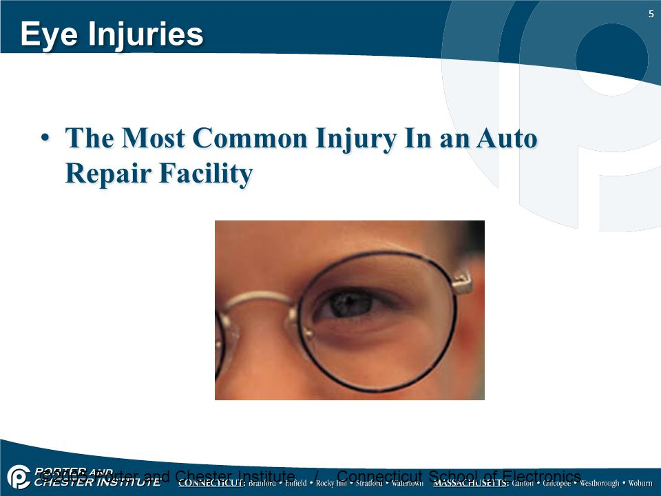 6 5 ways that an automotive repair worker can get an eye injury