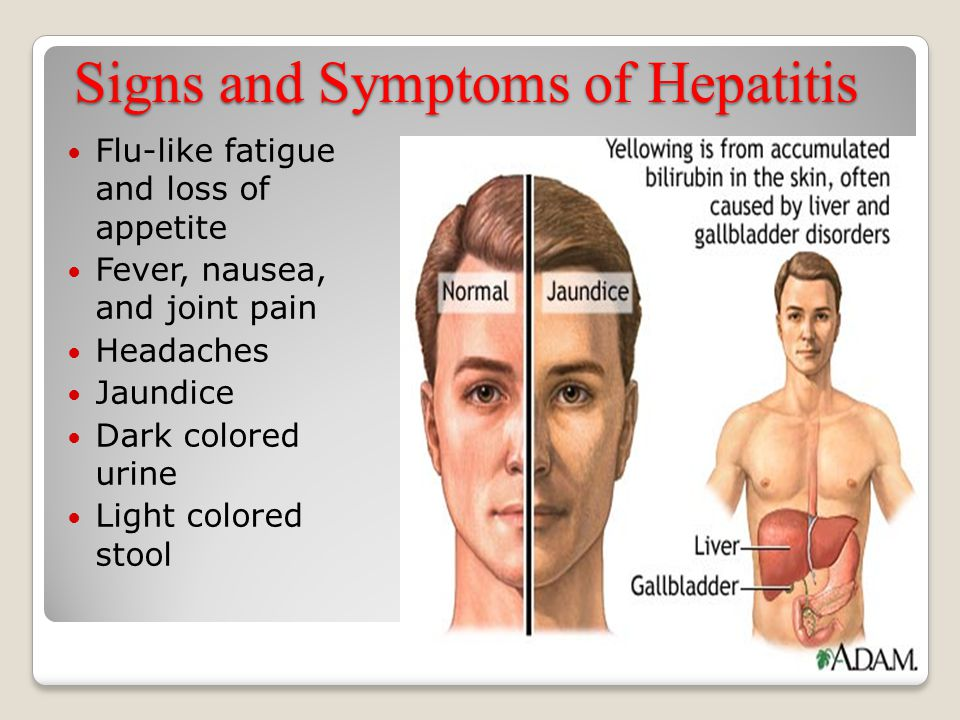 Signs and Symptoms of Hepatitis Flu-like fatigue and loss of appetite Fever, nausea, and joint pain Headaches Jaundice Dark colored urine Light colore