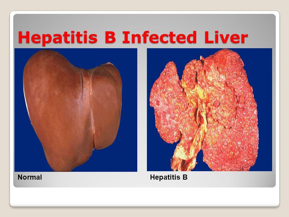 Hepatitis B Infected Liver NormalHepatitis B