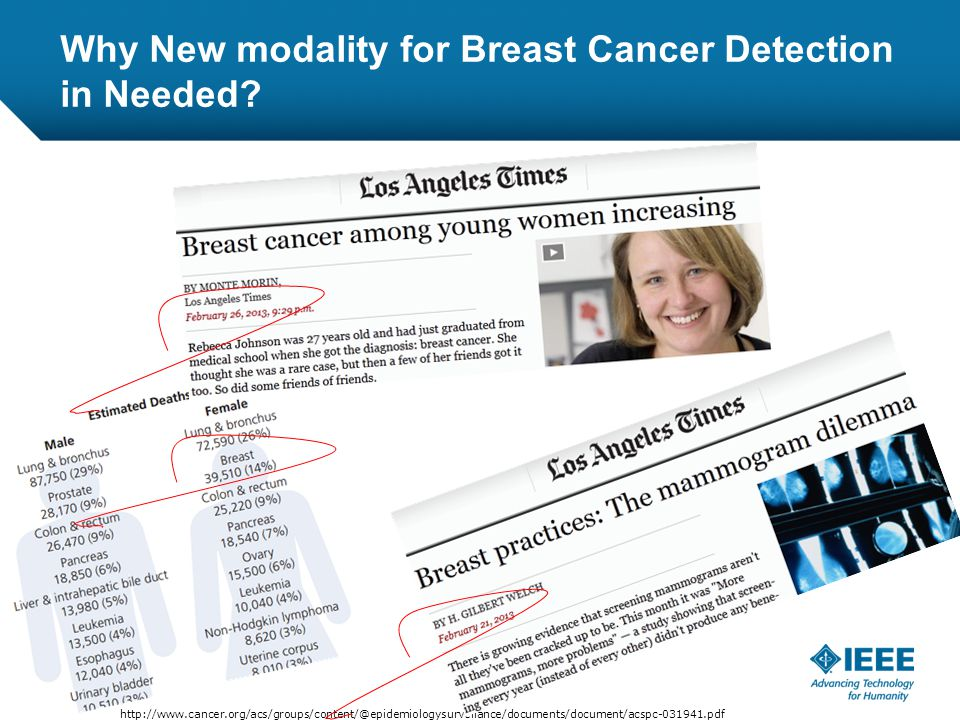 12-CRS-0106 REVISED 8 FEB 2013 http://www.cancer.org/acs/groups/content/@epidemiologysurveilance/documents/document/acspc-031941.pdf Why New modality for Breast Cancer Detection in Needed