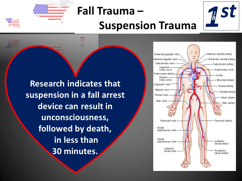 Fall Trauma – Suspension Trauma Research indicates that suspension in a fall arrest device can result in unconsciousness, followed by death, in less than 30 minutes.