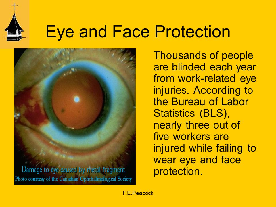 F.E.Peacock Eye and Face Protection Thousands of people are blinded each year from work-related eye injuries.