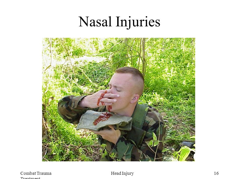Combat Trauma Treatment 16Head Injury Nasal Injuries