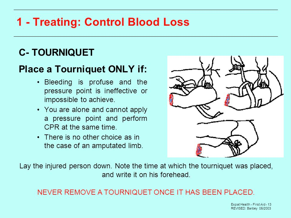Expat Health - First Aid - 13 REVISED: Barbey 05/ Treating: Control Blood Loss  C- TOURNIQUET  Place a Tourniquet ONLY if: Bleeding is profuse and the pressure point is ineffective or impossible to achieve.