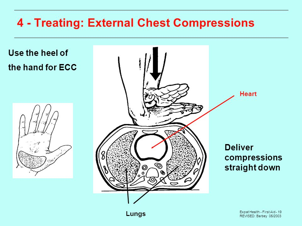 Expat Health - First Aid - 19 REVISED: Barbey 05/ Treating: External Chest Compressions Use the heel of the hand for ECC Deliver compressions straight down Lungs Heart