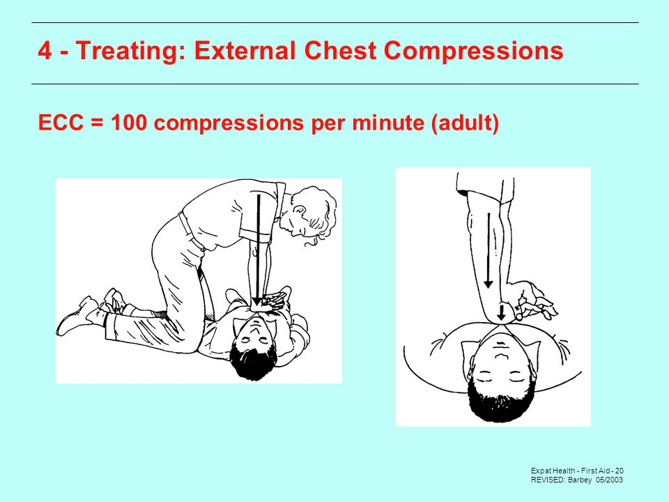Expat Health - First Aid - 20 REVISED: Barbey 05/ Treating: External Chest Compressions ECC = 100 compressions per minute (adult)