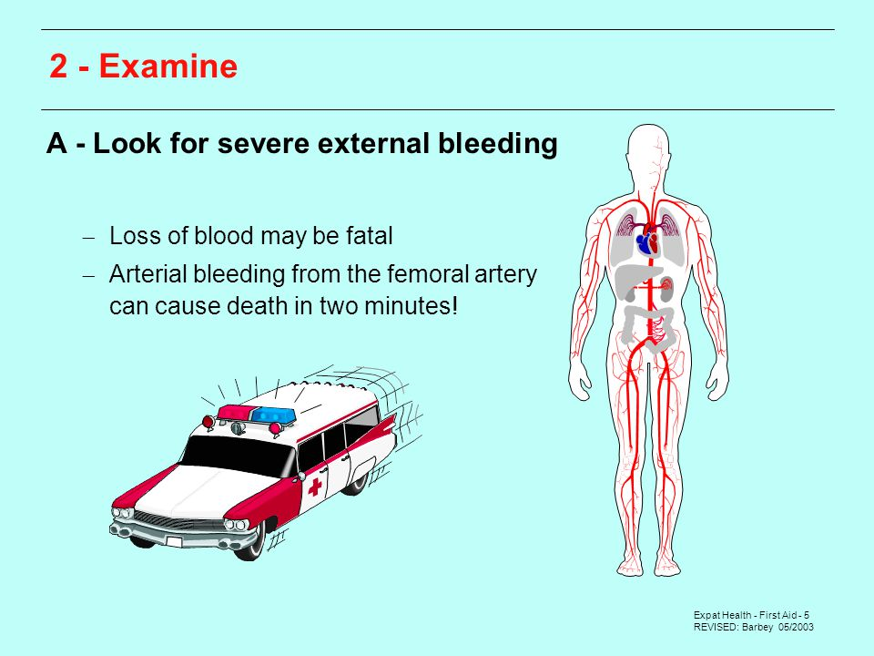 Expat Health - First Aid - 5 REVISED: Barbey 05/ Examine A - Look for severe external bleeding  Loss of blood may be fatal  Arterial bleeding from the femoral artery can cause death in two minutes!