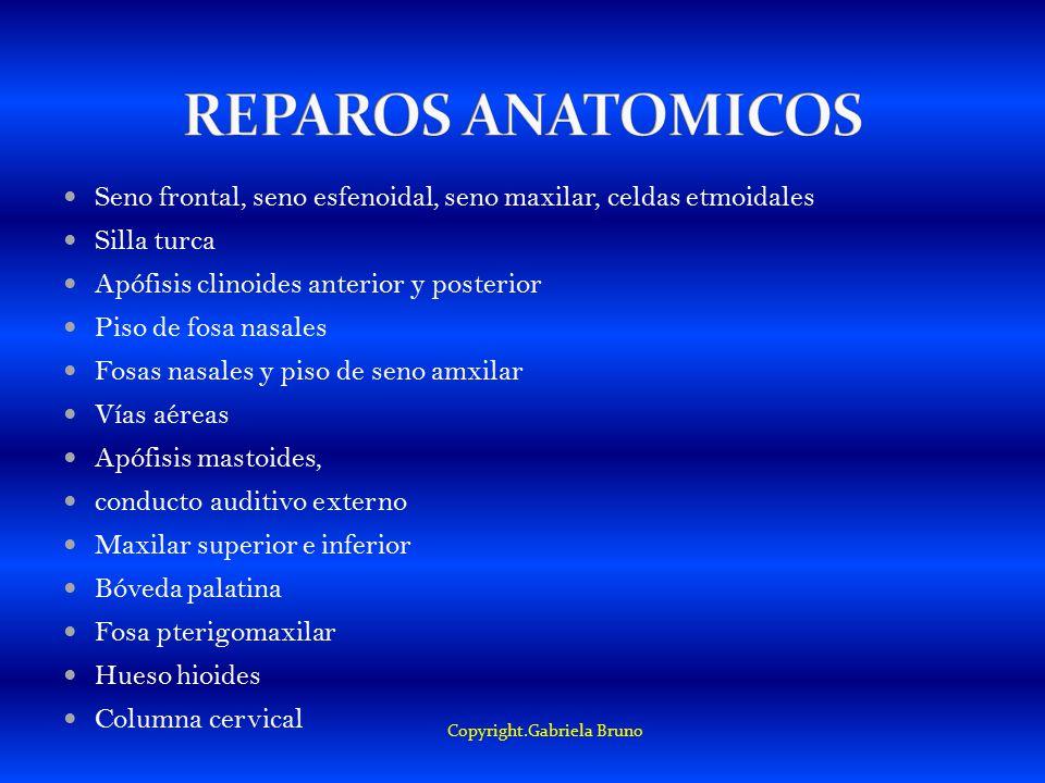 Seno frontal, seno esfenoidal, seno maxilar, celdas etmoidales Silla turca Apófisis clinoides anterior y posterior Piso de fosa nasales Fosas nasales