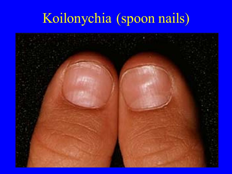 Koilonychia (spoon nails)