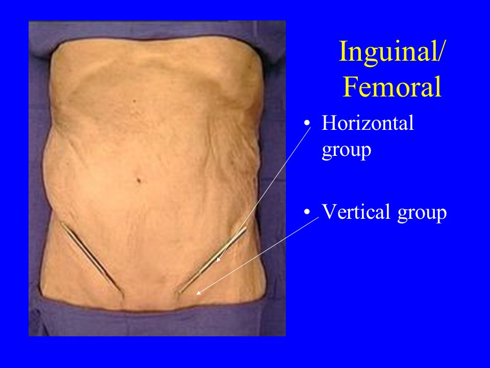 Inguinal/ Femoral Horizontal group Vertical group