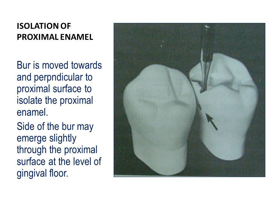 ISOLATION OF PROXIMAL ENAMEL Bur is moved towards and perpndicular to proximal surface to isolate the proximal enamel.