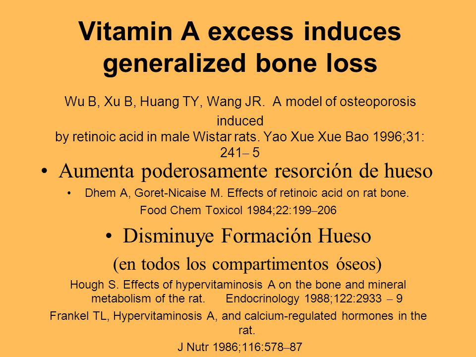 Vitamin A excess induces generalized bone loss Wu B, Xu B, Huang TY, Wang JR. A model of osteoporosis induced by retinoic acid in male Wistar rats. Ya