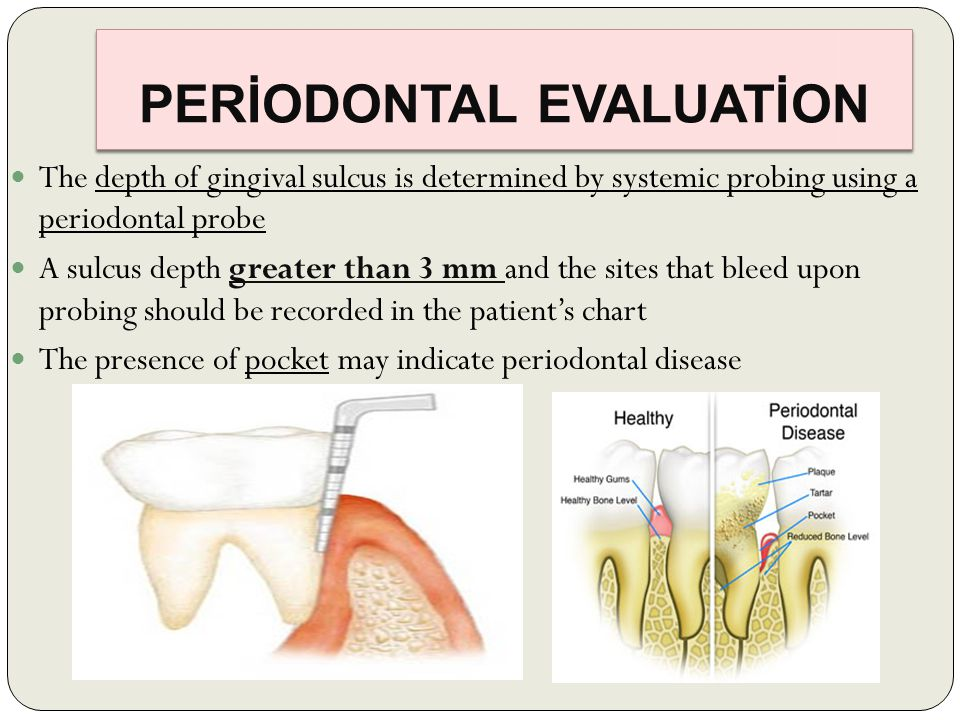 PERİODONTAL EVALUATİON The depth of gingival sulcus is determined by systemic probing using a periodontal probe A sulcus depth greater than 3 mm and the sites that bleed upon probing should be recorded in the patient's chart The presence of pocket may indicate periodontal disease
