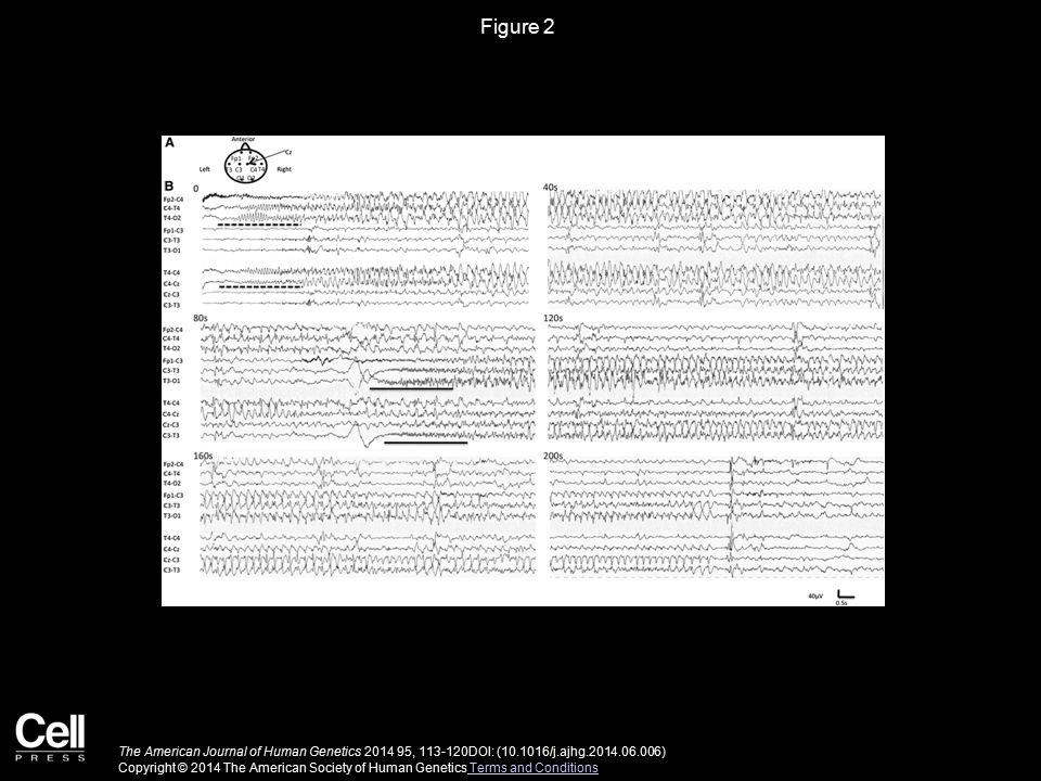 Figure 2 The American Journal of Human Genetics 2014 95, 113-120DOI: (10.1016/j.ajhg.2014.06.006) Copyright © 2014 The American Society of Human Genetics Terms and Conditions Terms and Conditions